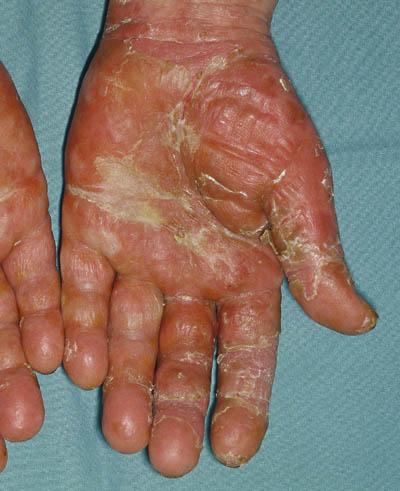 svamp i hænderne