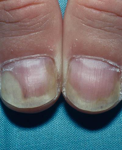 psoriasis i neglene