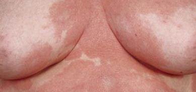 røde plamager på huden