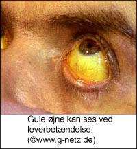 virus i øjnene