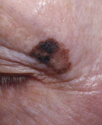modermærkekræft i øjet