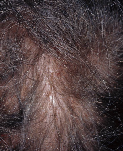 hvordan ser luseæg ud i håret