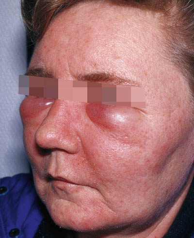 binyrebarkhormon bivirkninger allergi