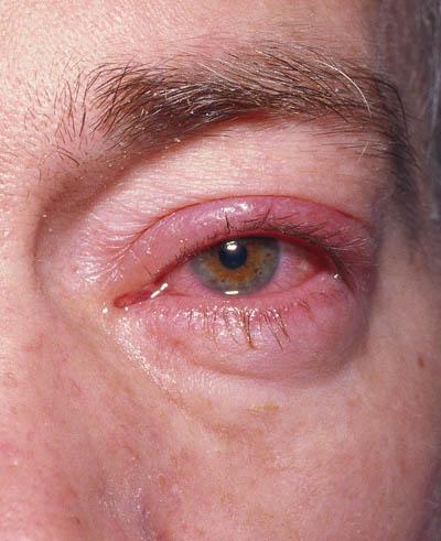 herpes øjne