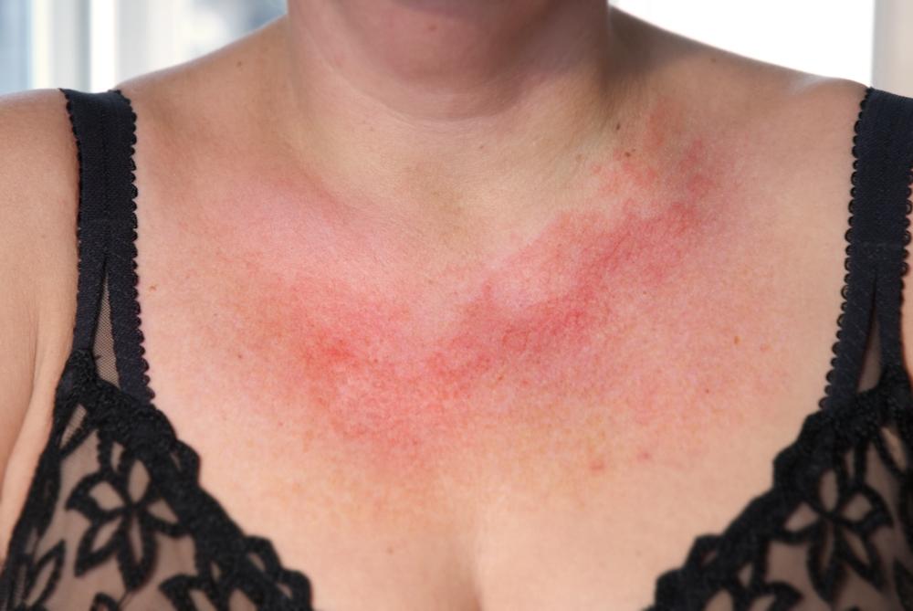 røde prikker på halsen